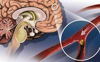 Чистка сосудов головного мозга народными средствами