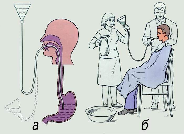 Инфографика промывание с использованием зонда
