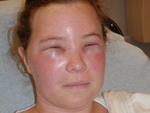 укус пчелы в лицо