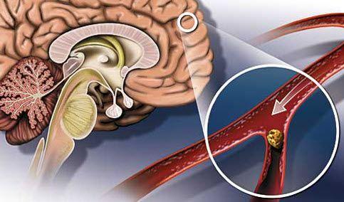 сосуды мозга